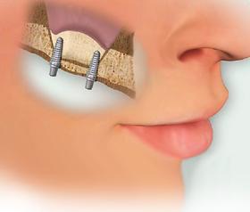 Серебрение молочных зубов у детей - суть метода,